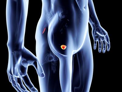 terapia vtp per il cancro alla prostata