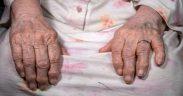artrite 2