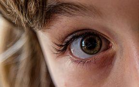 occhio pupille dilatate