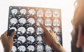 radiografia cervello medico
