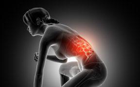 schiena, colonna vertebrale, donna